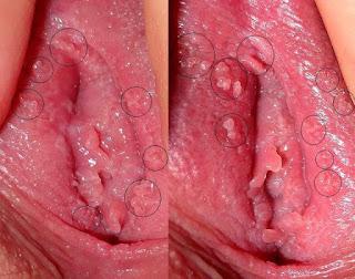 Bintik Merah kecil Di Bibir Vagina Seperti Daging Tumbuh