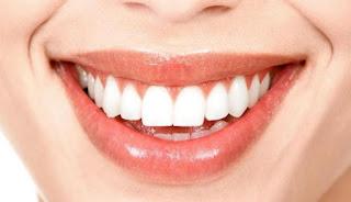 Cara-Memutihkan-Gigi-Secara-Alami-Dengan-Cepat