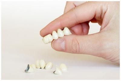 răng tạm được dùng sau khi cấy ghép implant -5