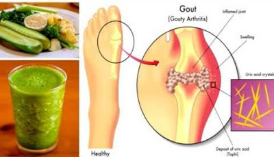SUFFERING FROM URIC ACID - HERE IS NATURAL RECIPE FOR REMOVING URIC ACID FROM JOINTS