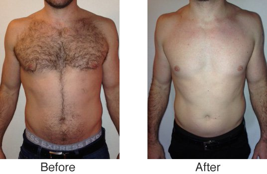 Best Cost Of Laser Hair Removal Delhi Get Best Cost Of Men Women