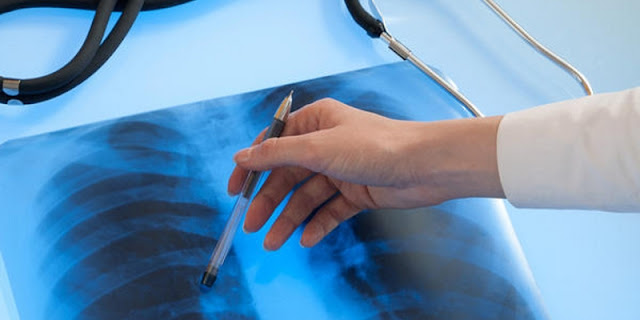 http://jualherbal.id/pengobatan-kanker-paru-paru