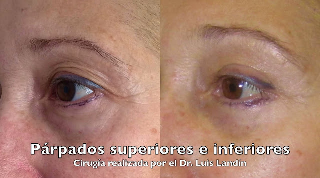 La imagen muestra el efecto de la cirugía de párpados en el párpado superior. A la izquierda antes de operar, a la derecha después de operar. Sobra mucha menos piel y la mirada está mucho más despejada.