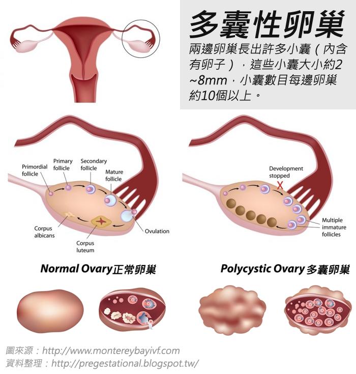 「多囊性卵巢癥」是什麼?這些癥狀不可不知!