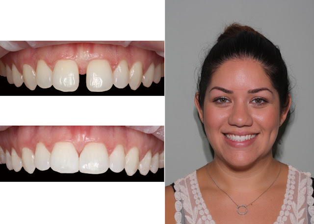bond teeth gap, fill tooth gap, close tooth spaces, Boynton Beach Cosmetic Dentist, dental bonding.
