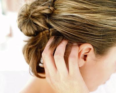 10 Tips Menghilangkan Kulit Kepala Gatal