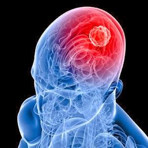 Cara Cepat Mengobati Penyakit: Obat Tumor Otak