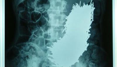 Dokter Keluarkan 600 Paku di Dalam Perut dengan Magnet