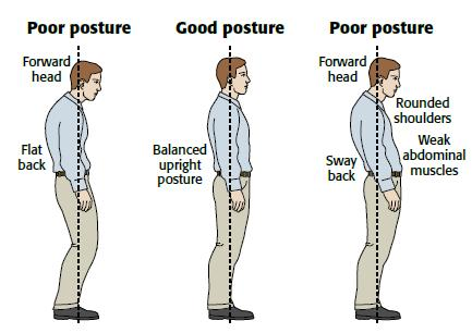 A forward head, flat back and rounded shoulders are all signs of poor posture which can lead to a lot of problems in later life