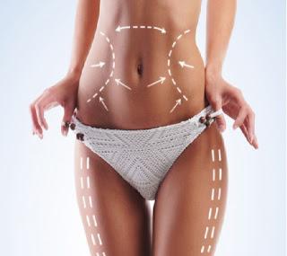 Vaser-Liposuction-Nedir