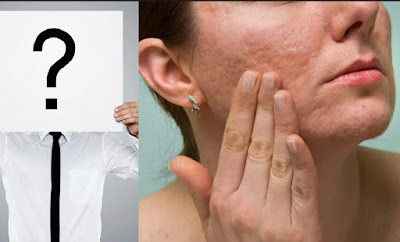 Acne Types, Cаuѕеѕ And Treatments