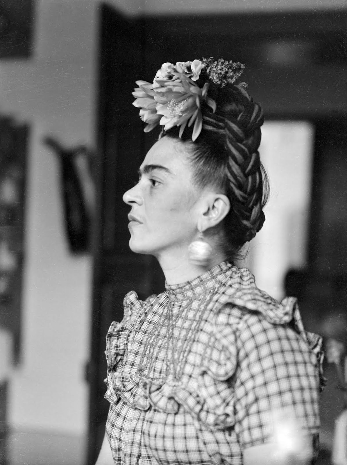 Although she was disabled by polio as a child, Kahlo had been a promising student headed for medical school until a traffic accident at age eighteen, which caused her lifelong pain and medical problems.