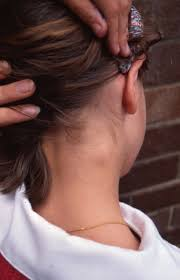 treatment for itchy scalp