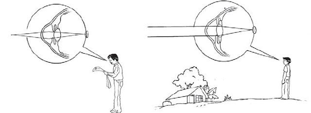 Alat Optik Mata dan Kaca Mata serta Mekanisme Proses Melihat pada Mata