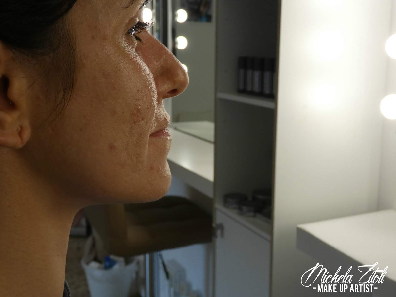 Make Up Modena Truccatrice malattie della pelle