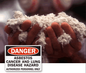 Asbestos Lung Cancer, an Asbestos Disease | Mesotheliomasandiego