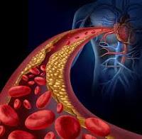 cara mengobati kolesterol, gejala kolesterol, apa itu kolesterol, cari obat kolesterol, harga obat kolesterol