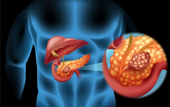 Doar doua felii din acest aliment cresc cu 20% riscul de cancer pancreatic