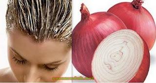 Atasi Rambut Rontok Dan Kering Dengan Bawang Merah