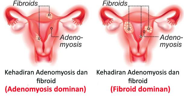 Cara Mengobati Adenomyosis (adenomiosis)
