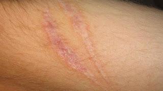 "Pada 2017 para peneliti menemukan cara membuat agar luka baru dapat sembuh tanpa bekas melalui regenerasi kulit tanpa menjadi keloid - penemuan yang sebelumnya dianggap tidak mungkin dilakukan pada mamalia. George Cotsarelis, ketua Departemen Dermatologi di University of Pennsylvania, berkata ""Intinya, kita bisa memanipulasi penyembuhan luka sehingga dapat meregenerasi kulit dan bukan bekas luka. Rahasianya adalah dengan menumbuhkan folikel rambut terlebih dahulu. Setelah itu, lemak akan beregenerasi sebagai respons terhadap sinyal dari folikel tersebut."""