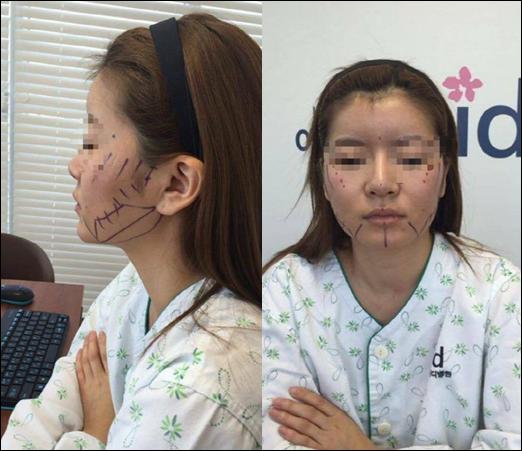 รีวิวศัลยกรรมเกาหลี : ศัลยกรรมวีไลน์ โหนแก้ม แก้จมูกที่ โรงพยาบาลไอดี!
