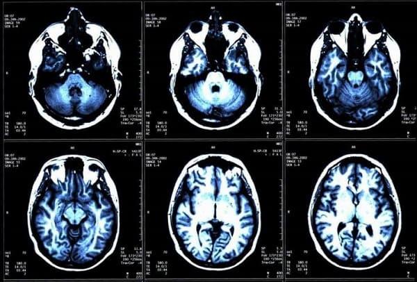 علماء :اكتشاف منطقة التشاؤم في الدماغ!