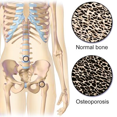 Waspadai Ancaman Osteoporosis