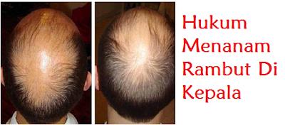 atasi masalah botak