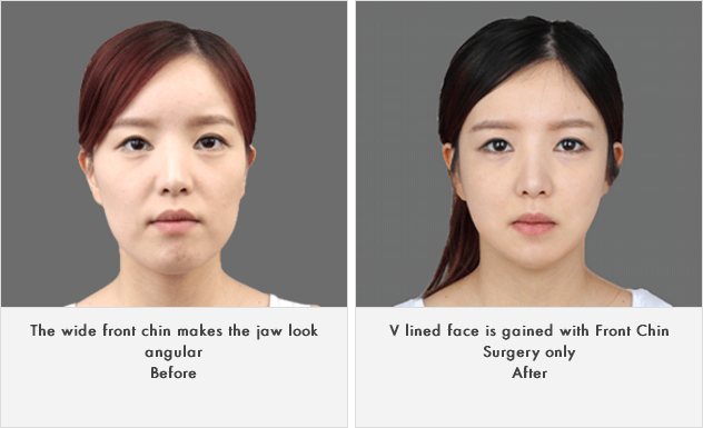 짱이뻐! - Korean Face Contouring - Front Chin Surgery