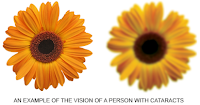Vision With Normal vs Eye With Cataracts