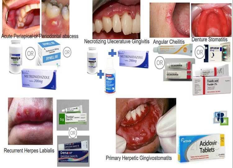 أدوية لعلاج ألم الأسنان - ملخص أهم الأدوية المستخدمة في طب الأسنان