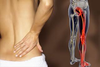 8 Remèdes pour la douleur sciatique que vous deviez essayer avant de mettre un autre analgésique dans votre bouche