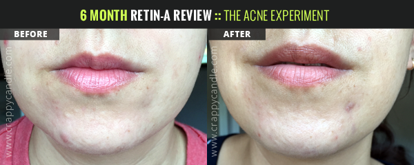 Retin-A Before/After - Chin:: The Acne Experiment