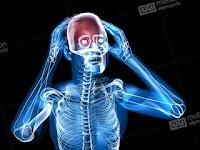 7 Obat Sakit Kepala Belakang Secara Alami