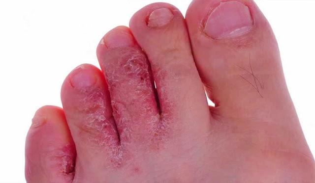 علاج عدوى الفطر في أقدام الرياضيين بالأعشاب
