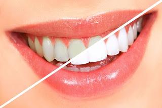 Cara Alami Untuk Memutihkan Gigi Yang Kuning