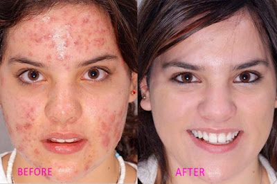 Rosacea Treatment Natural Remedies