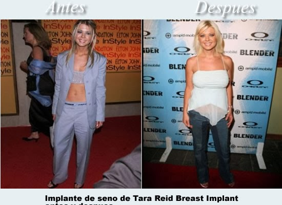 Tara Reid Liposuction Results