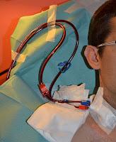 detalle de catéter insertado en cuello