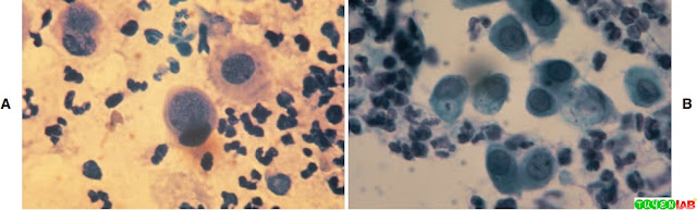 A and B, Cytologic examination of endocervical specimens demonstrating inclusion bodies consistent with Chlamydia trachomatis. Papanicolaou stain. (B, 600×).