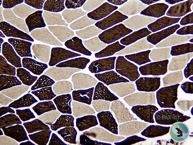 Muscle under the microscope captured with a PAXcam microscope camera.