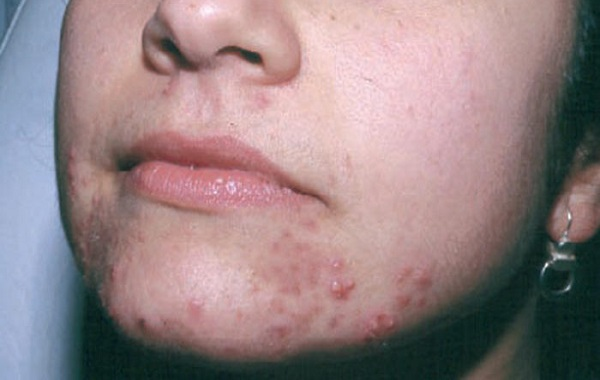 Causes and How to Get Rid Of Mouth Acne - BeautyHealthPlus