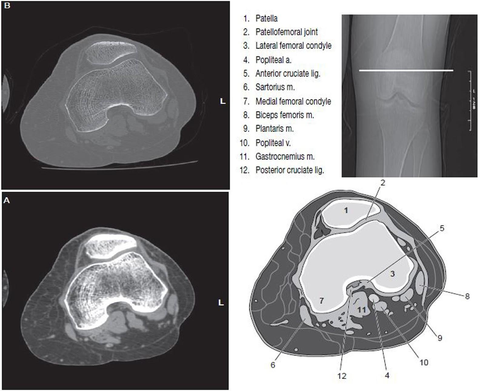 Dorable Ct Head Anatomy Adornment Human Anatomy Images