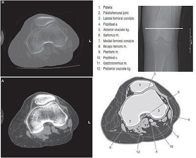 knee CT