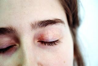 Simptom (Gejala), Punca, Dan Rawatan Anemia Kekurangan Zat Besi