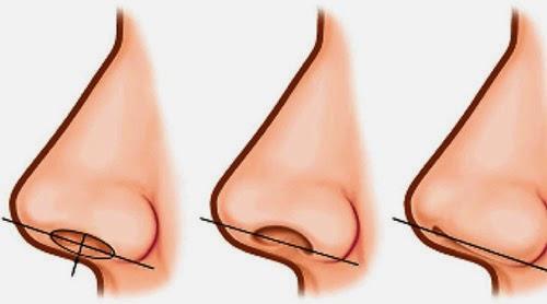 Best Sinusitis Treatment Kerala
