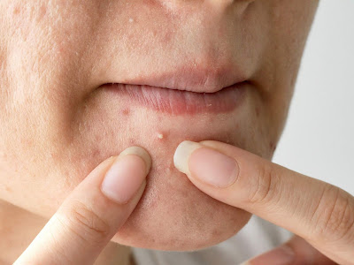10 Most Common Misunderstanding About Pimples (Acne)