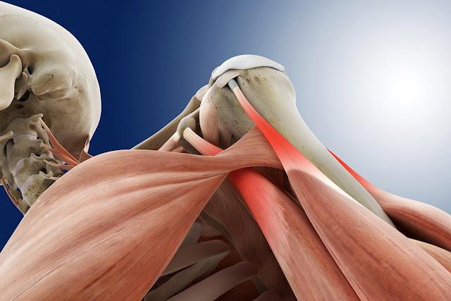 أسباب و علاج التهاب الأوتار بالأعشاب .