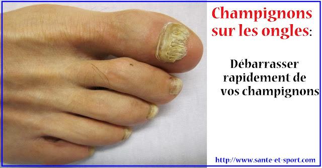 champignon-ongles